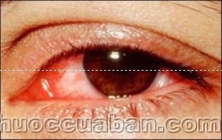 Đau mắt đỏ, Chế độ ăn uống kiêng kị cho bệnh đau mắt đỏ