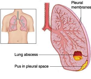 Tổn thương do áp xe phổi, ap xe phoi