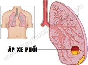 Áp xe phổi, Nguyên nhân, triệu chứng, điều trị