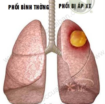 Đông y chữa áp xe phổi