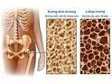 Loãng xương, loang xuong, loangxuong, bệnh loãng xương