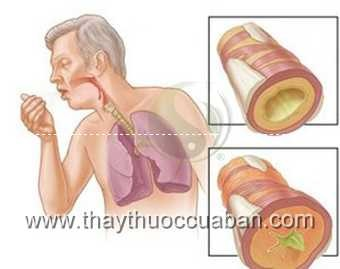 Suy hô hấp