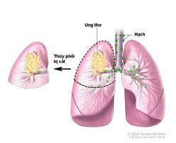 Đông y chữa bệnh ung thư phổi