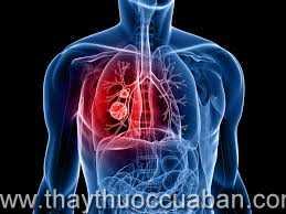 Đông y chữa ung thư phổi