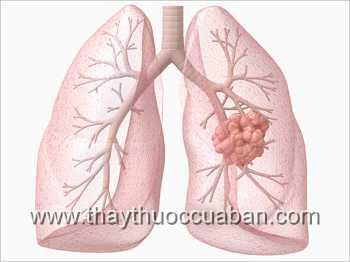 Chữa bệnh ung thư phổi