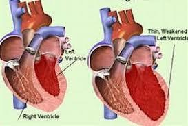 viêm cơ tim